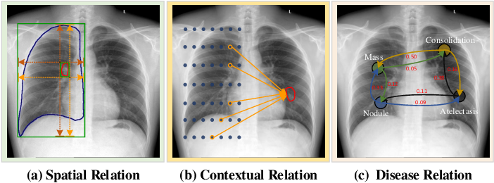 Figure 1 for A Structure-Aware Relation Network for Thoracic Diseases Detection and Segmentation