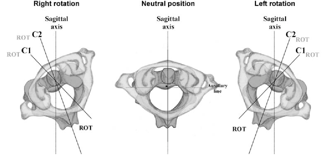 Figure 1 from C2-fractures: part II. A morphometrical analysis of ...