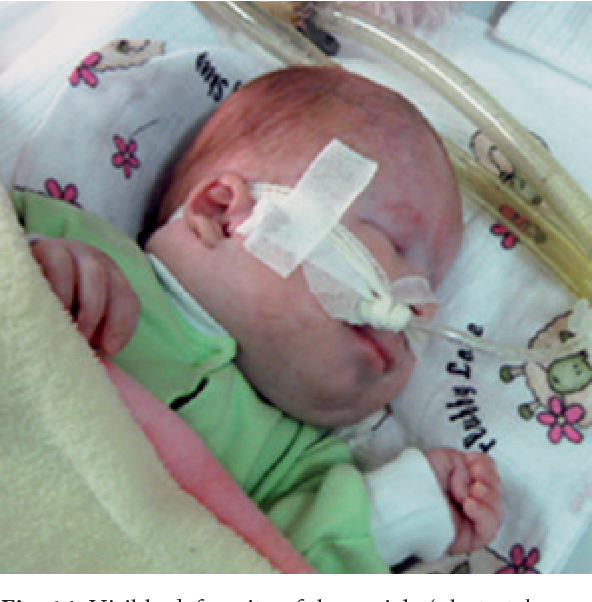 PDF] Ethical Considerations Related to Viable Fetuses with Trisomy