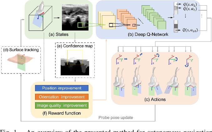 Figure 1 for Autonomous Navigation of an Ultrasound Probe Towards Standard Scan Planes with Deep Reinforcement Learning