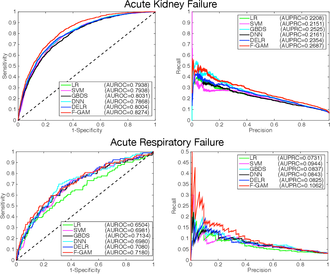 Figure 4 for A Factored Generalized Additive Model for Clinical Decision Support in the Operating Room