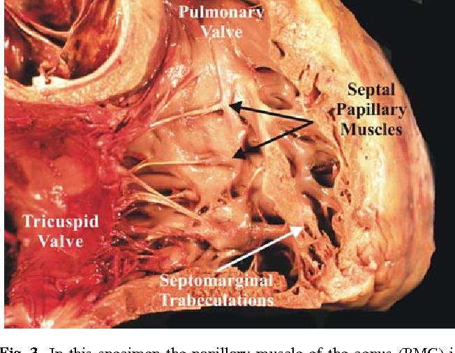 An Endoscopic And Anatomical Approach To The Septal Papillary Muscle