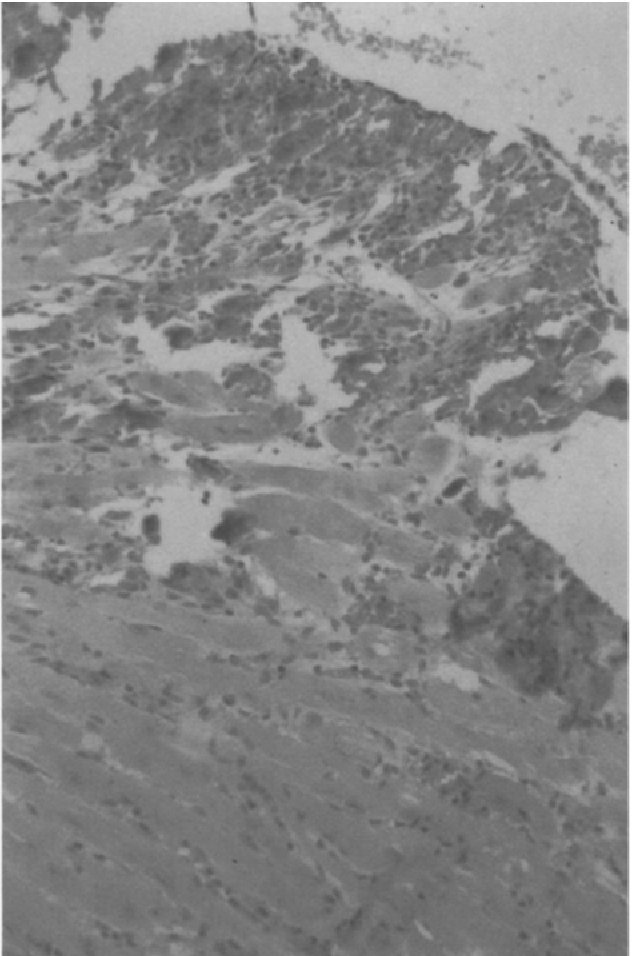 Fig. 4. Cardiac section from a female DBA/2J mouse 7 days after a single i.v. injection of free doxorubicin (25 mg/kg). Cellular edema, monocytic infiltration, and cell necrosis were evident