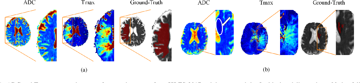 Figure 1 for Combining unsupervised and supervised learning for predicting the final stroke lesion
