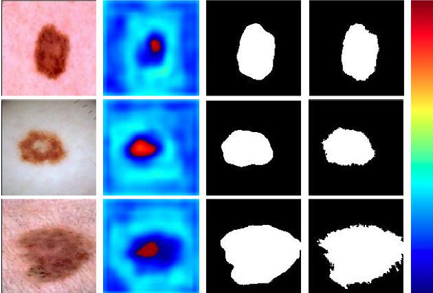 Figure 4 for Complementary Network with Adaptive Receptive Fields for Melanoma Segmentation