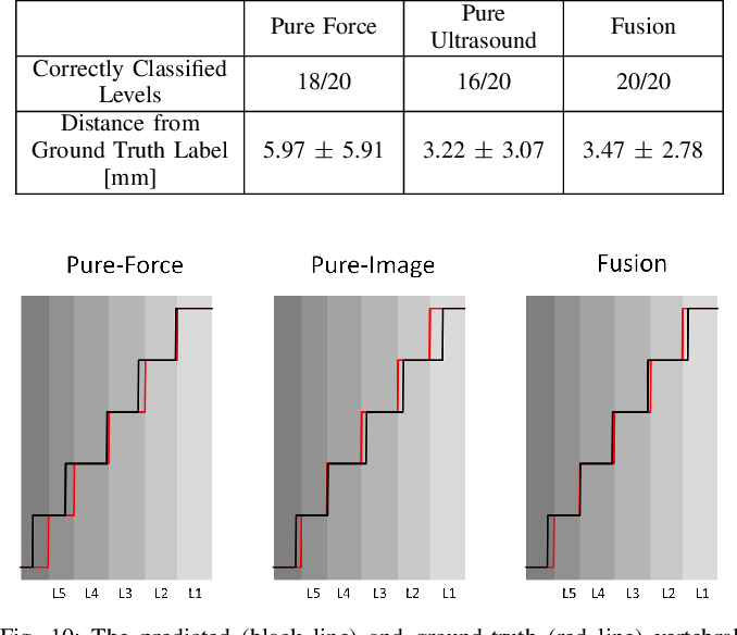 """Figure 2 for Force-Ultrasound Fusion: Bringing Spine Robotic-US to the Next """"Level"""""""