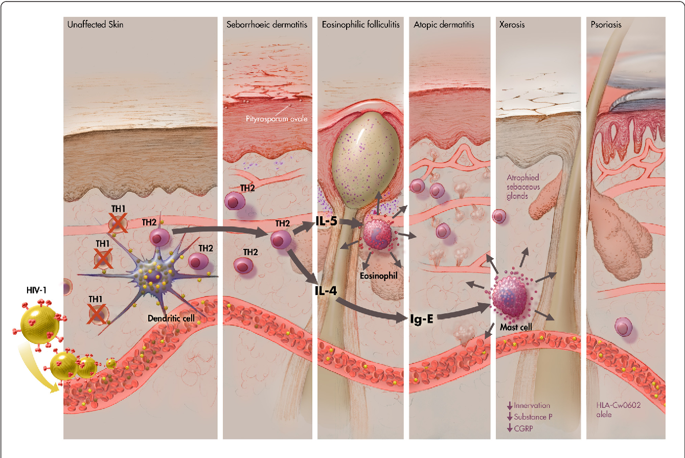 Figure 2 From New Insights Into Hiv 1 Primary Skin Disorders