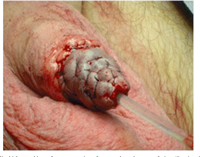 Figure 1 From Current Surgical Management Of Penile Cancer -2448