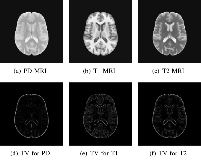 Figure 1 for A Deep Information Sharing Network for Multi-contrast Compressed Sensing MRI Reconstruction