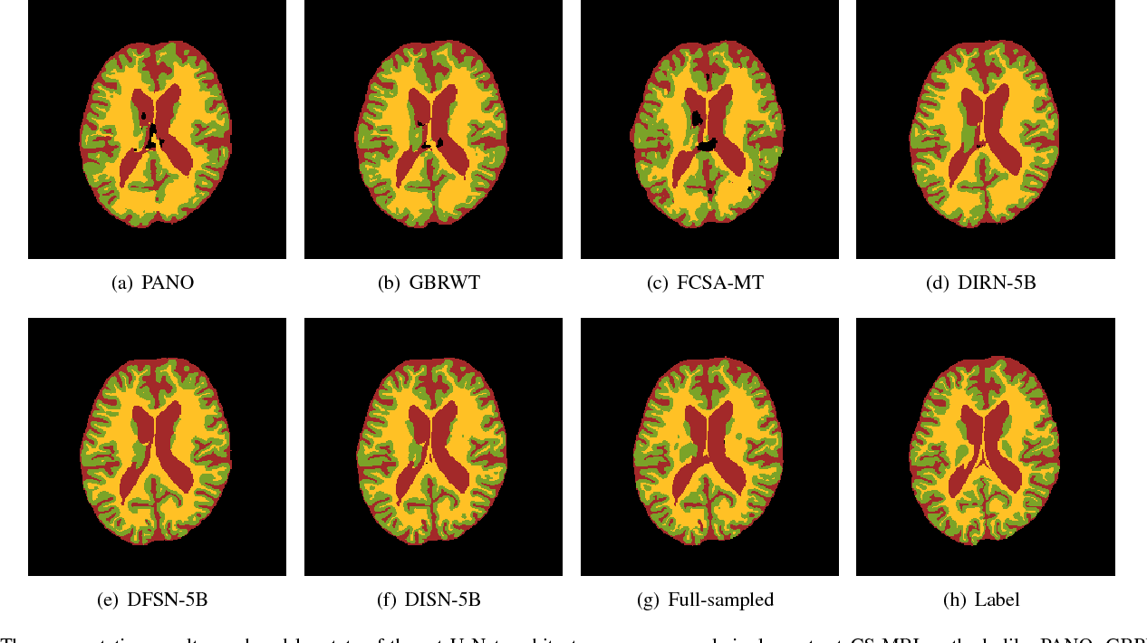 Figure 3 for A Deep Information Sharing Network for Multi-contrast Compressed Sensing MRI Reconstruction