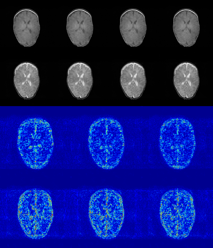 Figure 4 for A Deep Information Sharing Network for Multi-contrast Compressed Sensing MRI Reconstruction