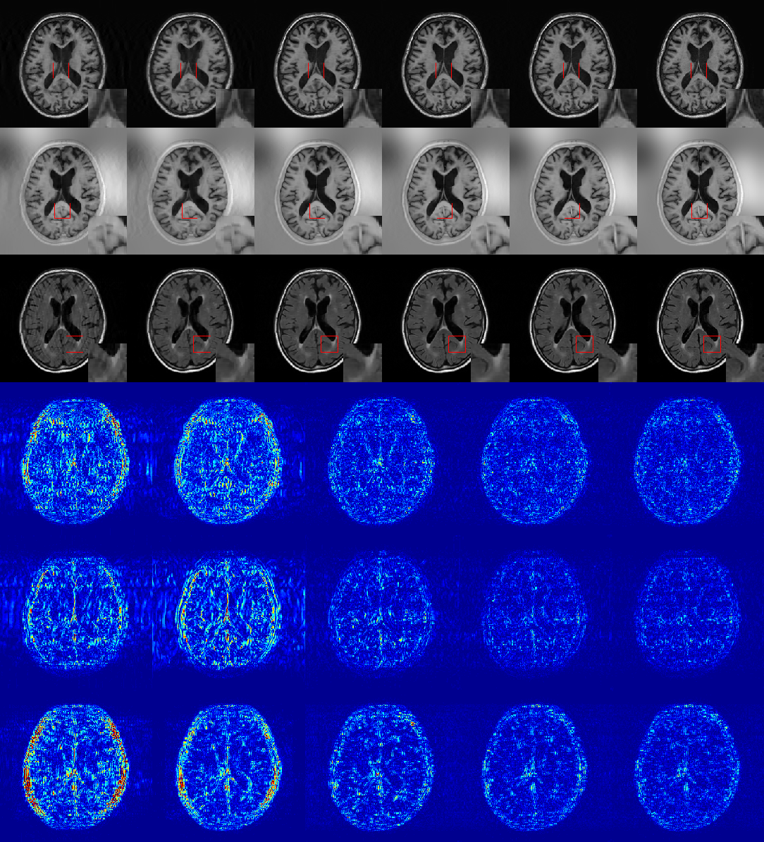 Figure 2 for A Deep Information Sharing Network for Multi-contrast Compressed Sensing MRI Reconstruction