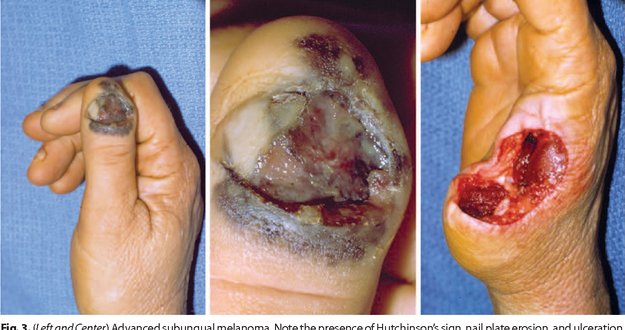 Figure 3 from Subungual melanoma: a review of current treatment ...