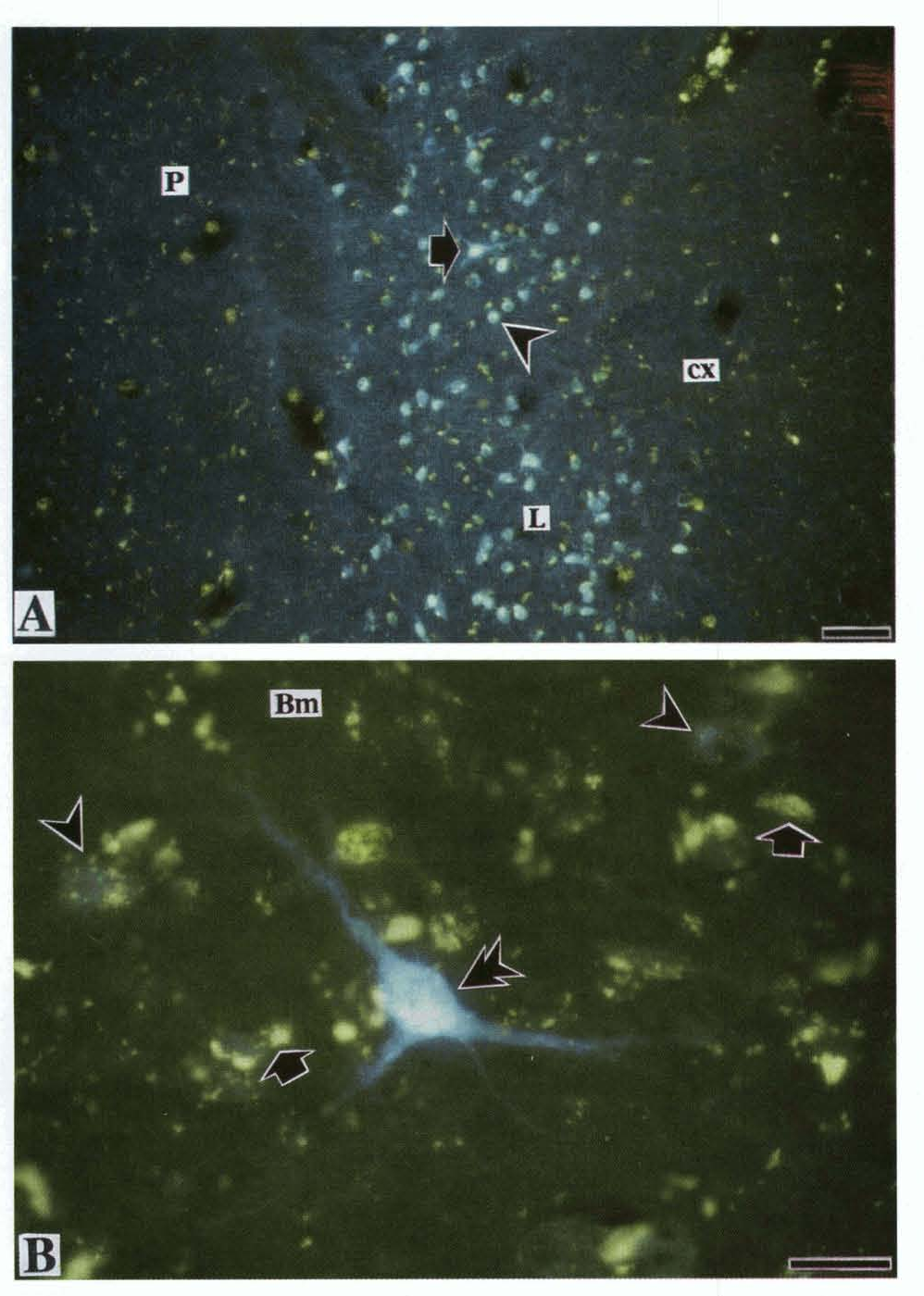 Fig. 13. High-power fluorescence photomicrograph of retrogradely labeled cells in the arnygdaloid nuclei after injection into the ventral zone of area EP, in DlI,R. A, retm-