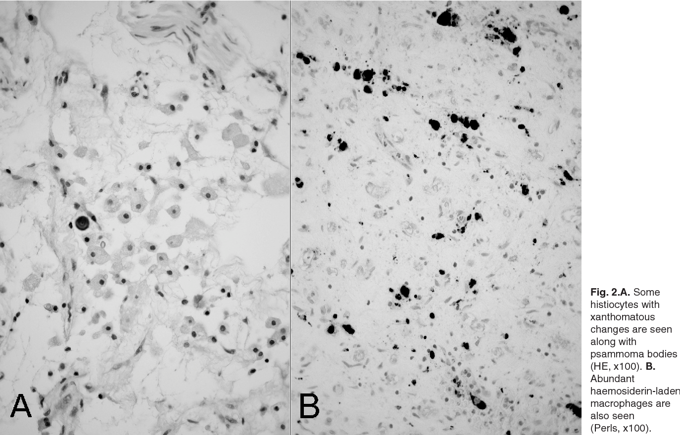 Figure 2 From Neurofibroma With Psammoma Bodies Semantic Scholar