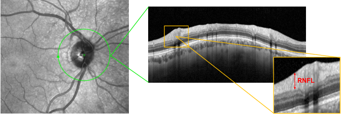 Figure 1 for Glaucoma Detection From Raw Circumapillary OCT Images Using Fully Convolutional Neural Networks