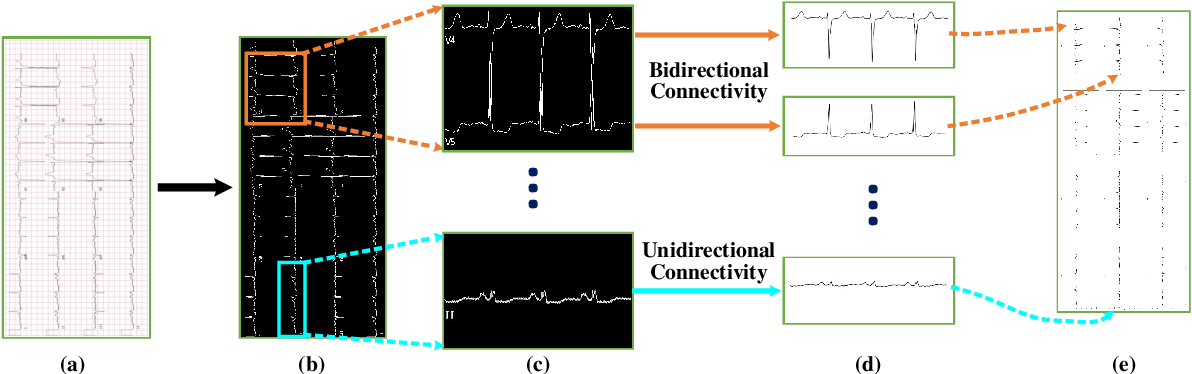 Figure 1 for CRT-Net: A Generalized and Scalable Framework for the Computer-Aided Diagnosis of Electrocardiogram Signals