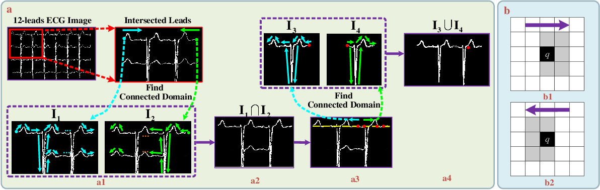 Figure 3 for CRT-Net: A Generalized and Scalable Framework for the Computer-Aided Diagnosis of Electrocardiogram Signals