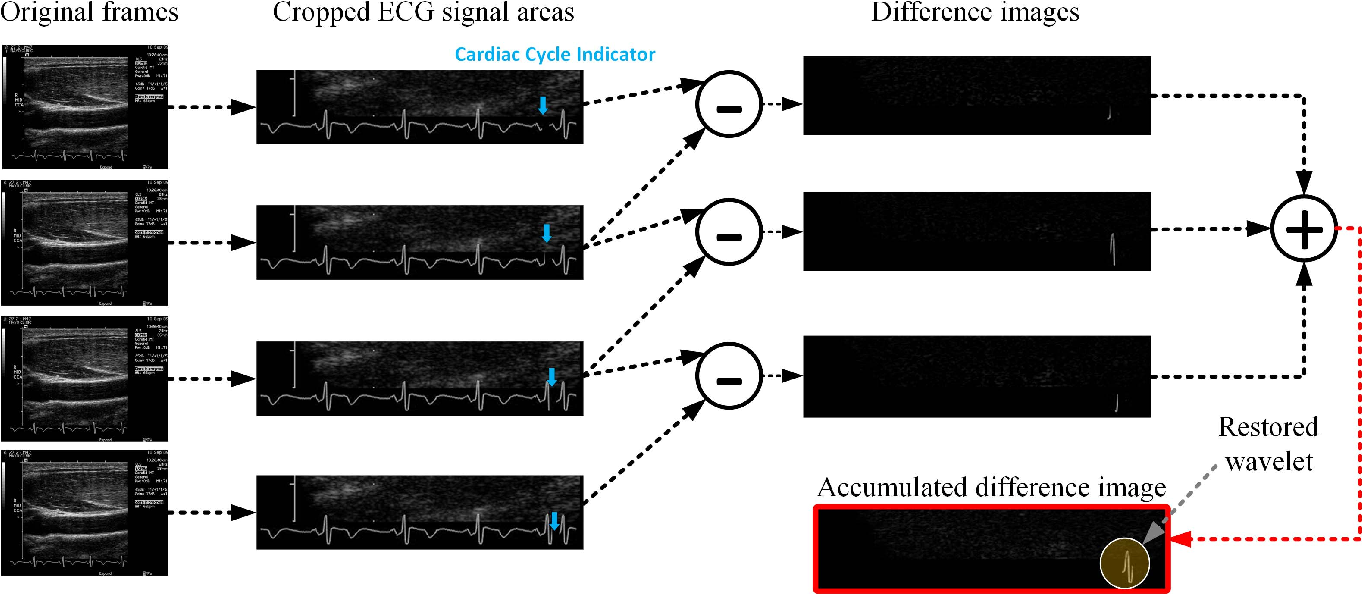 Figure 3 for Automating Carotid Intima-Media Thickness Video Interpretation with Convolutional Neural Networks