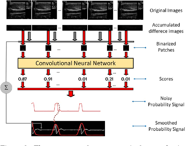 Figure 4 for Automating Carotid Intima-Media Thickness Video Interpretation with Convolutional Neural Networks
