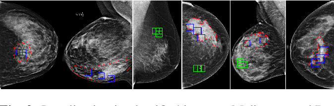 Figure 3 for Classification and Detection in Mammograms with Weak Supervision via Dual Branch Deep Neural Net