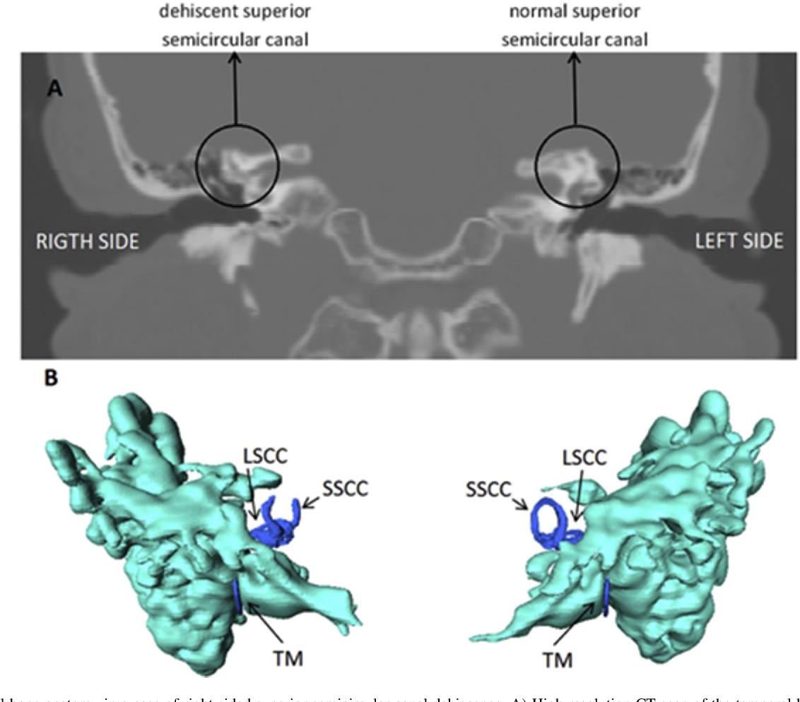 Temporal bone anatomy characteristics in superior semicircular canal ...