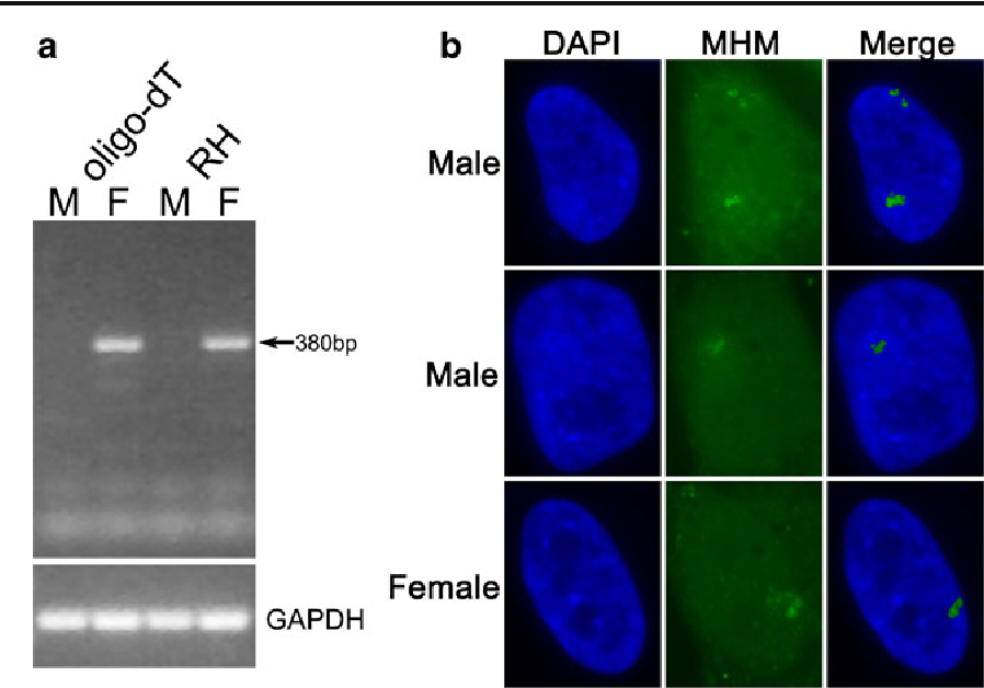 Fig. 3 Pattern of MHM RNA expression in the chicken fibroblast nuclei. a Detection of MHM RNA with RT-PCR in chicken fibroblast cells. There was no expression in male cells. Reverse transcription was primed by oligo-dT or random hexamers (RH). b The cells were treated with 5-AC and MHM RNA expression was localized by RNA FISH using MHM BAC DNA (64B7) as a probe. In males, 85% of cells had only one MHM RNA signal. There were 312 male and 372 female cells counted