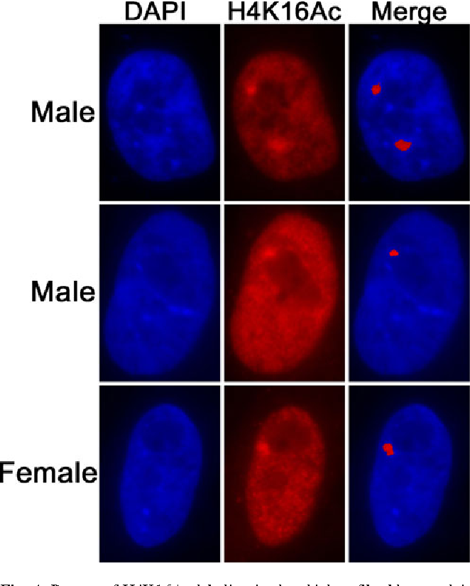 Fig. 4 Pattern of H4K16Ac labeling in the chicken fibroblast nuclei. The cells were treated with 5-AC and immunostained with an antibody against acetylated H4K16Ac. The merged figure was produced after thresholding the H4K16Ac signal. The majority of male cells showed a single locus of immunostaining (middle panel)