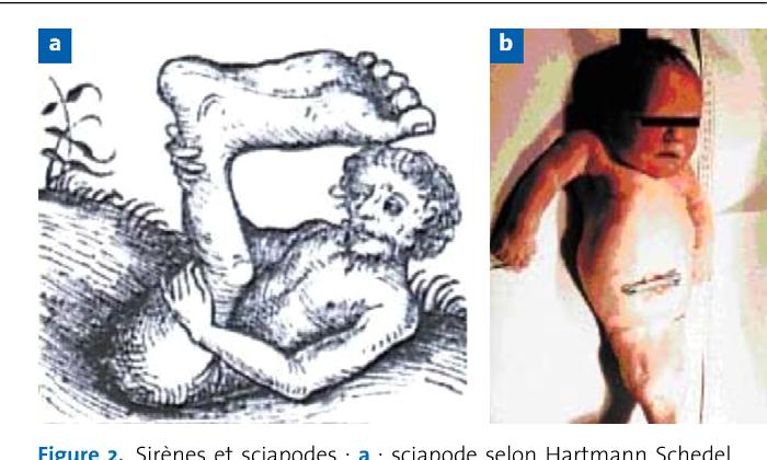 Figure 2. Sirènes et sciapodes : a : sciapode selon Hartmann Schedel, Chronique du Monde, 1493 ; b : nouveau-né atteint de sirénomélie.
