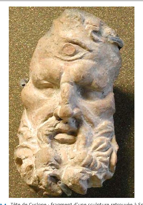 Figure 4. Tête de Cyclope : fragment d'une sculpture retrouvée à Smyrne (Turquie). Musée du Louvre.