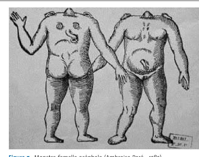 Figure 7. Monstre femelle acéphale (Ambroise Paré ; 1585).