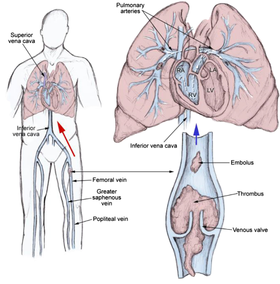Figure 2 from Venous thromboembolism: An overview. - Semantic Scholar
