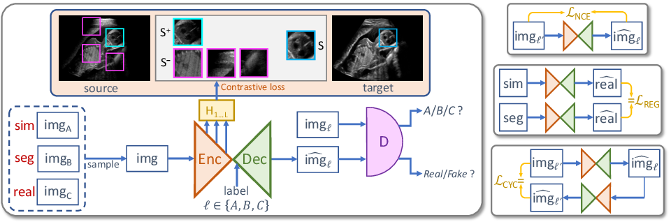 Figure 1 for Content-Preserving Unpaired Translation from Simulated to Realistic Ultrasound Images
