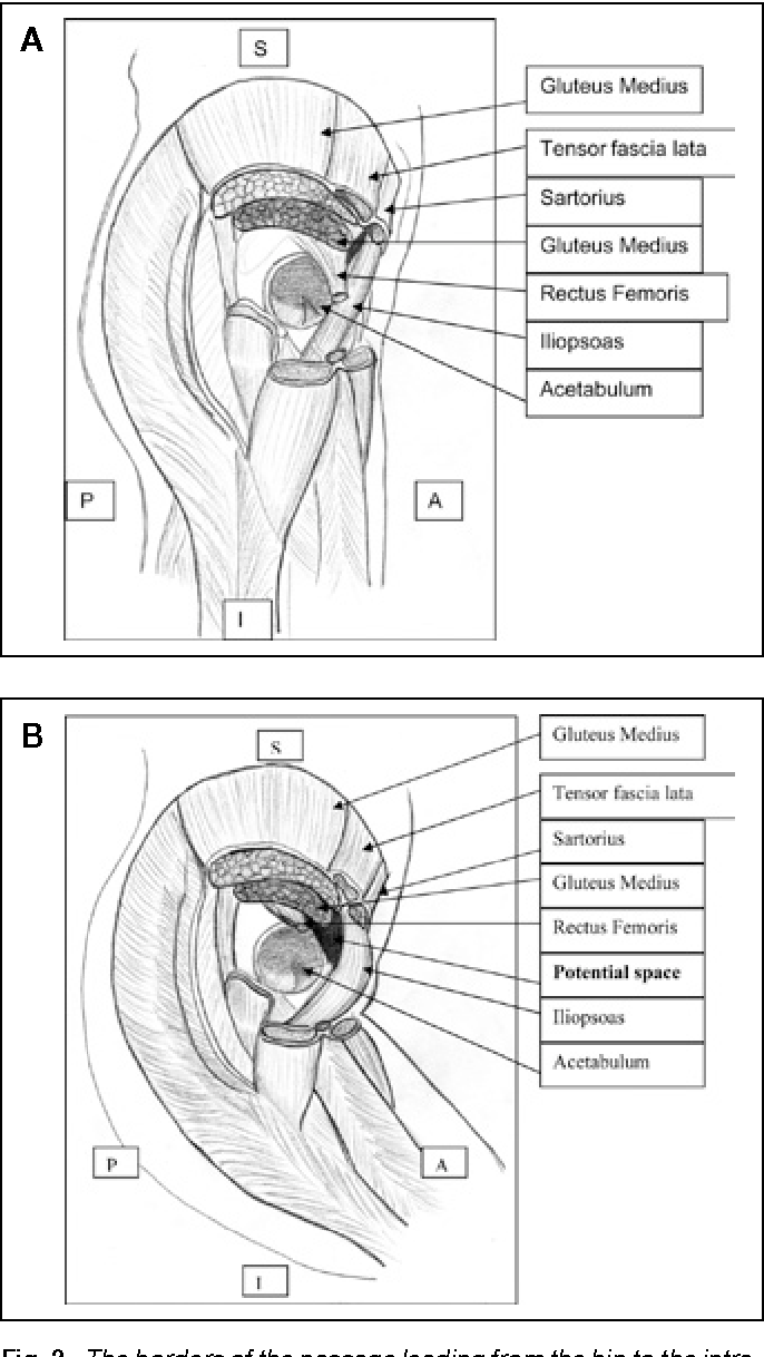 The surgical anatomy of intra-abdominal prosthetic dislocation ...
