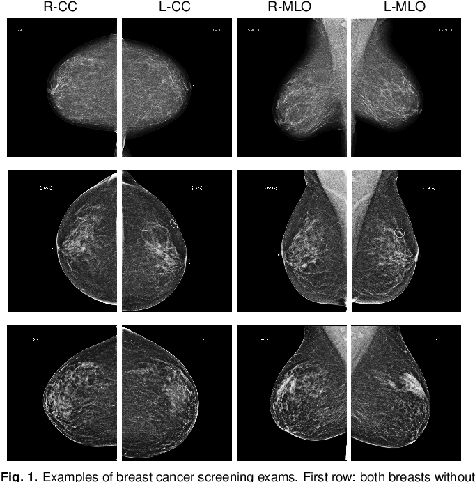 Figure 1 for Deep Neural Networks Improve Radiologists' Performance in Breast Cancer Screening
