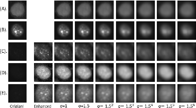 Figure 1 for HEp-2 Cell Classification: The Role of Gaussian Scale Space Theory as A Pre-processing Approach