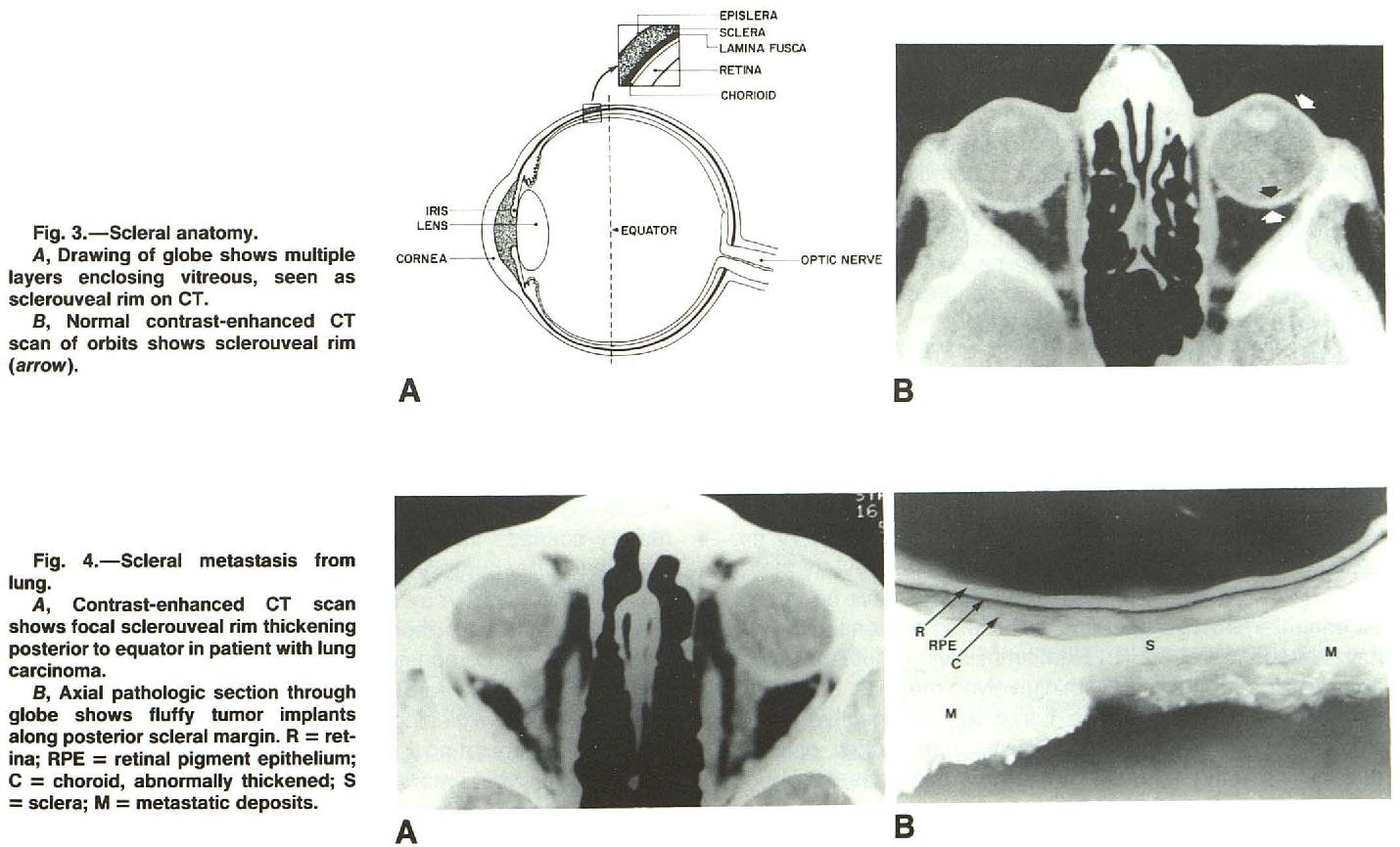 Figure 3 from Scleral inflammatory disease. - Semantic Scholar