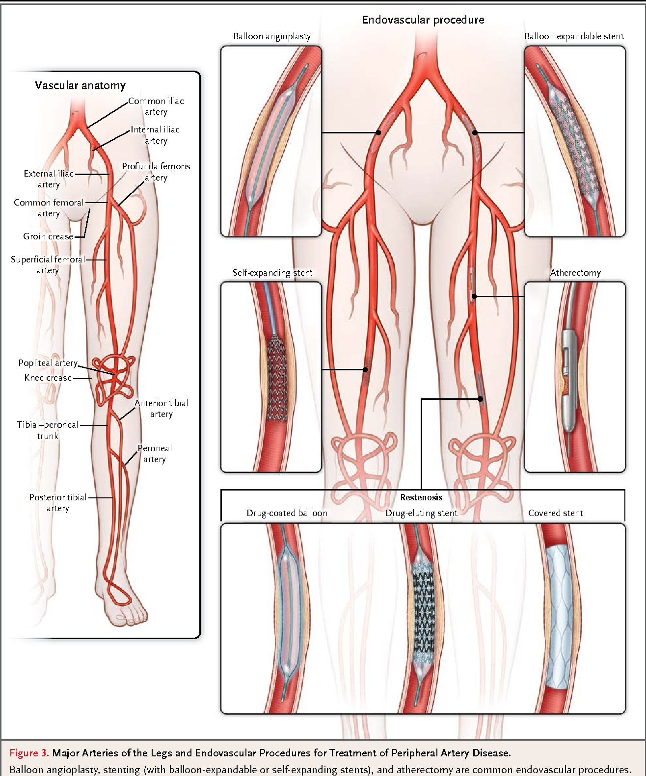 Figure 3 from CLINICAL PRACTICE. Peripheral Artery Disease ...