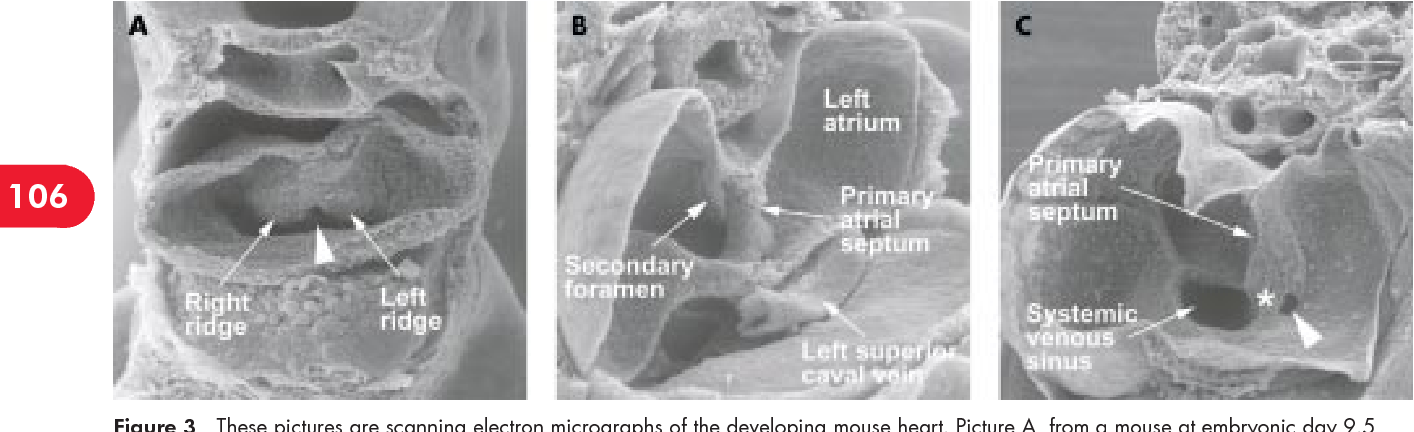 Figure 3 from Anatomy DEVELOPMENT AND STRUCTURE OF THE ATRIAL SEPTUM ...