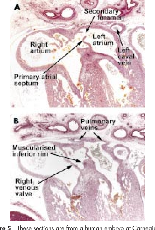 Figure 5 From Anatomy Development And Structure Of The Atrial Septum