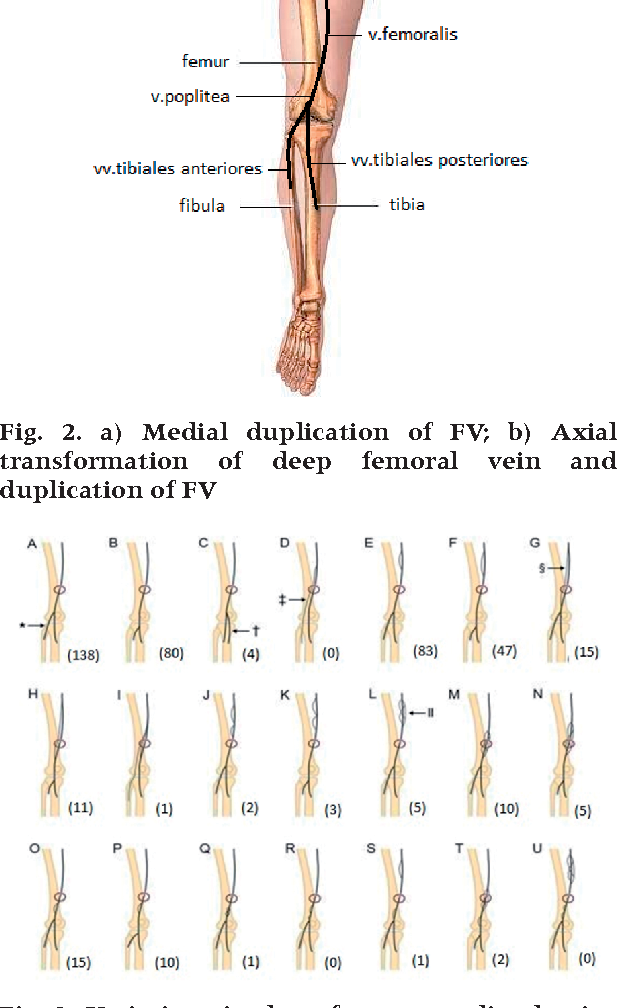 Attractive Lower Leg Venous Anatomy Composition - Human Anatomy ...