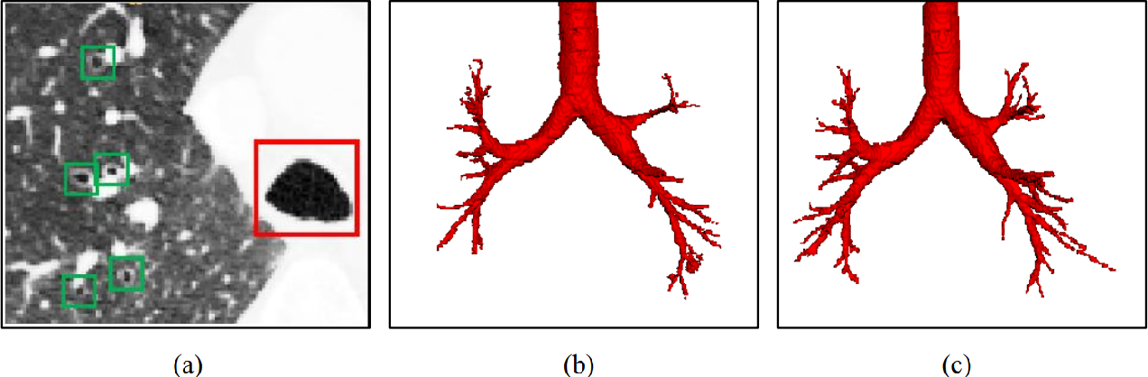 Figure 1 for Coarse-to-fine Airway Segmentation Using Multi information Fusion Network and CNN-based Region Growing