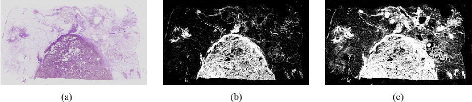 Figure 4 for A Semi-Supervised Framework for Automatic Pixel-Wise Breast Cancer Grading of Histological Images