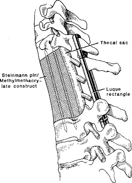 Anterior Thoracic Corpectomy Without Sternotomy A Strategy For