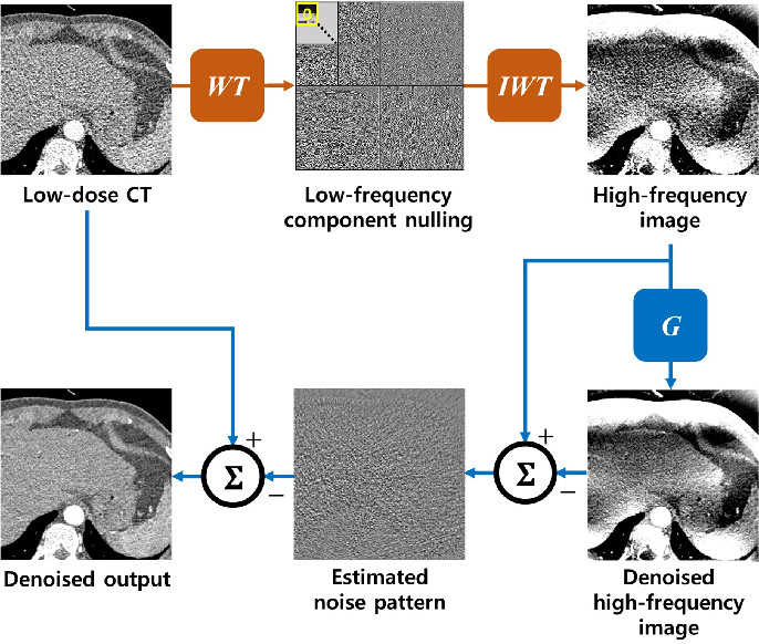 Figure 4 for AdaIN-Switchable CycleGAN for Efficient Unsupervised Low-Dose CT Denoising