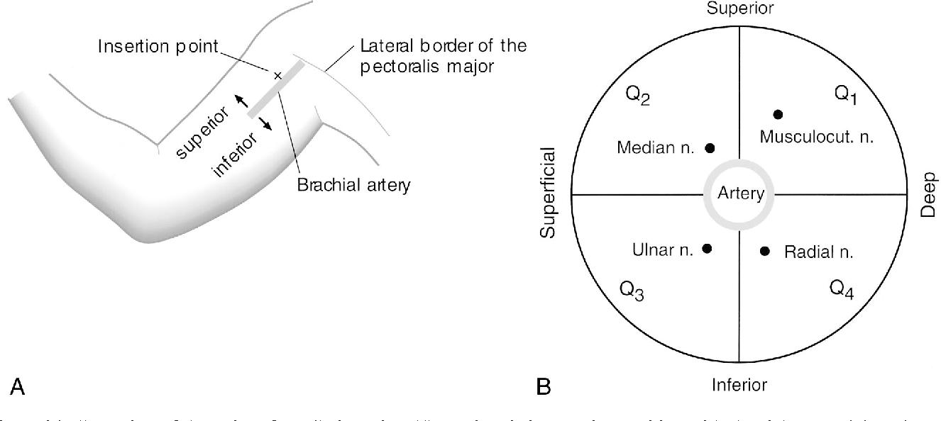 Distribution of local anesthetic in axillary brachial plexus block ...