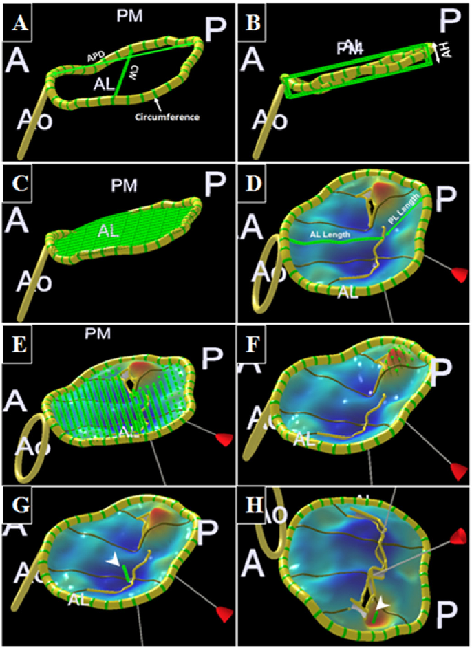 Automated quantification of mitral valve anatomy using anatomical ...