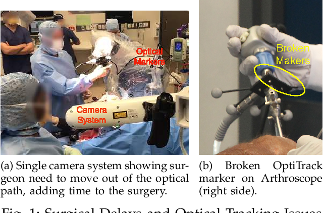 Figure 1 for Real-time Joint Motion Analysis and Instrument Tracking for Robot-Assisted Orthopaedic Surgery