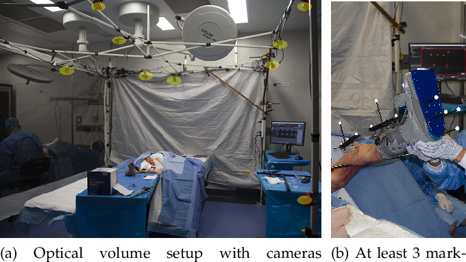 Figure 4 for Real-time Joint Motion Analysis and Instrument Tracking for Robot-Assisted Orthopaedic Surgery