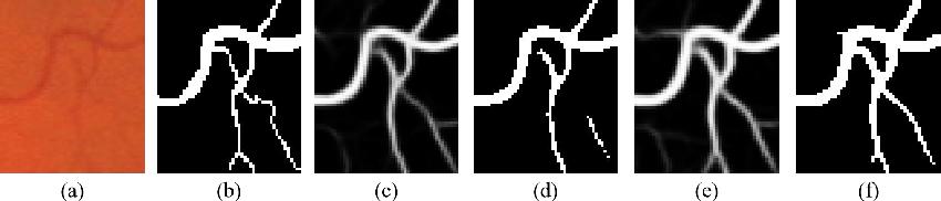 Figure 1 for Boosting Connectivity in Retinal Vessel Segmentation via a Recursive Semantics-Guided Network